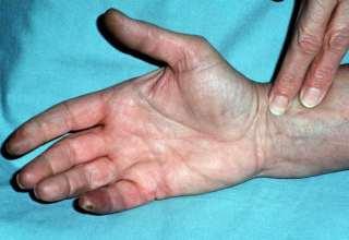 بیماری تاکایاسو چیست و چه علائمی دارد ؟
